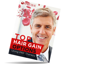 Top Hair Gain Options Ebook - PRP