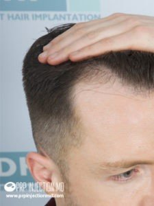 Hair Transplant - PRP