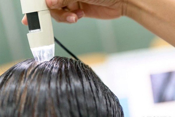 PRP Hair Loss Treatment Before and After Precautions Image - PRP
