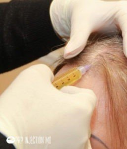 PRP-Injection-Hair-Image-PRP-Image
