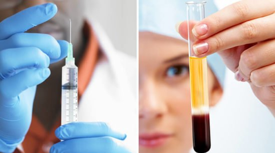 PRP injections vs cortisone shots