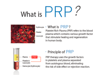 What is PRP