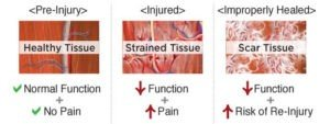 What is PRP - Healing Scar Tissue with PRP Injections