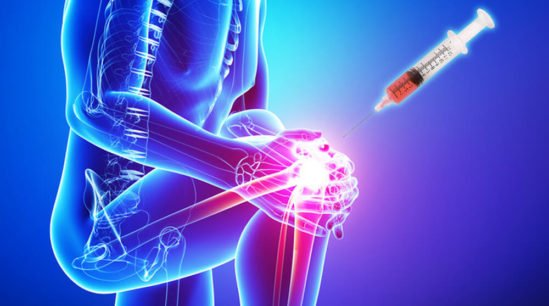 PRP therapy for Arthritis
