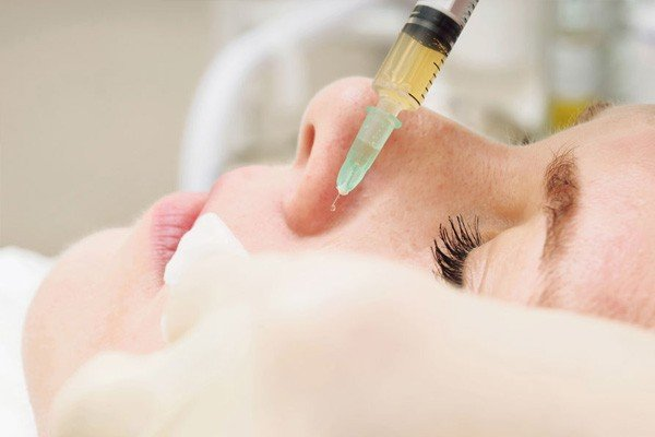 Getting PRP Scar Treatment is Quick and Simple Image - PRP