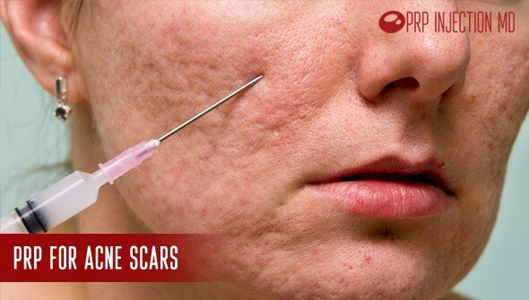PRP for Acne Scars | Platelet Rich Plasma Therapy