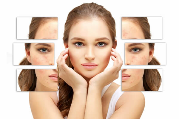 Reviews for Acne Scars and Marks Image - PRP