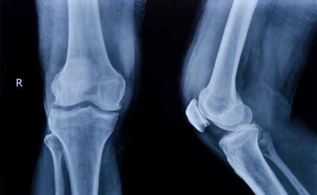 Xray of Cartilage Damage Image - PRP