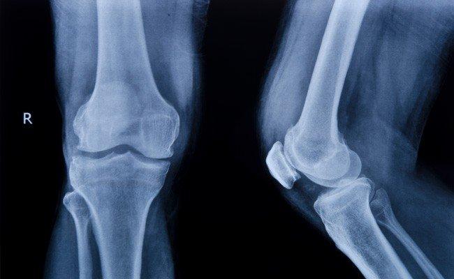 Xray of Cartilage Damage Image - PRP