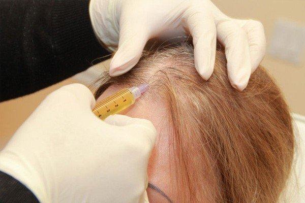 PRP Hair Treatment Permanent Solution Image