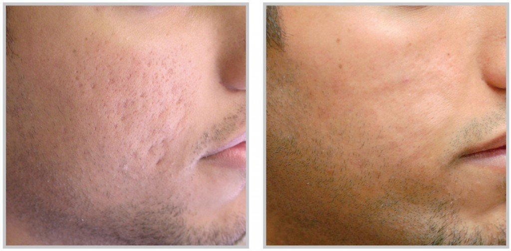 Acne Scars Image - PRP