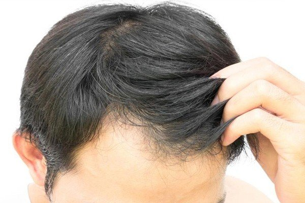 Is PRP Hair Treatment Permanent Solution Image - PRP