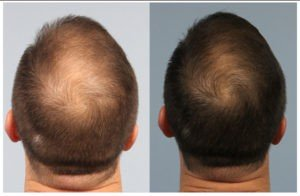 PRP Before and After Hair Treatments Image - PRP