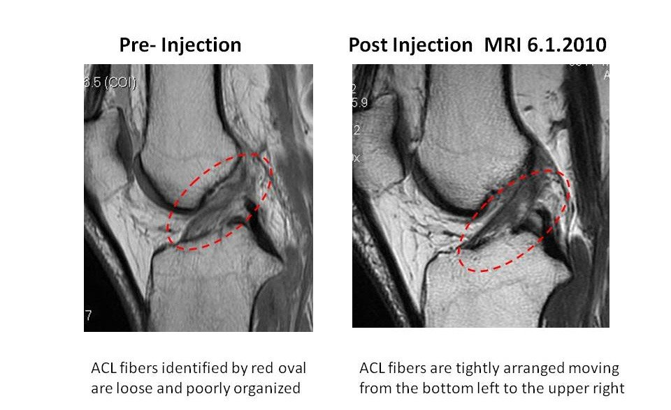 PRP Injections for Ligament and Muscle Injuries Image - PRP