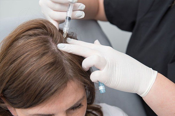 Hair Treatment Painful Image - PRP