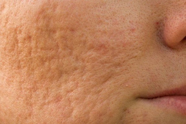 Microneedling for Acne Scars Image - PRP