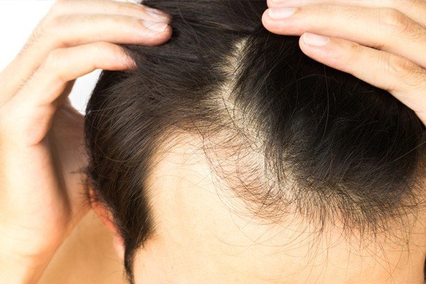 PRP for Hair Regrowth Image