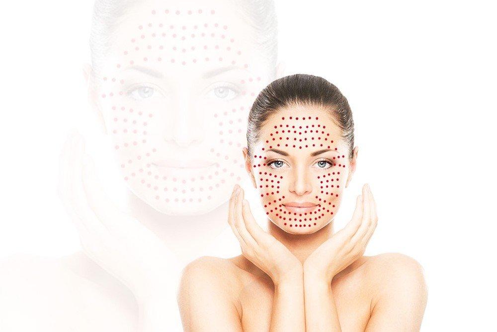 Vampire Facial Benefits Prp Facial Prp Anti Aging