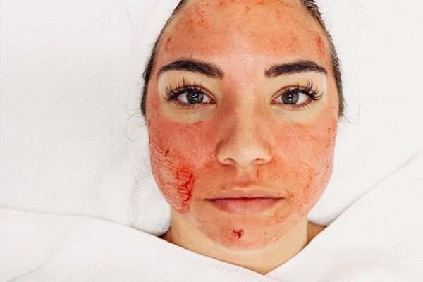 Vampire Facial Recovery Time Image - PRP