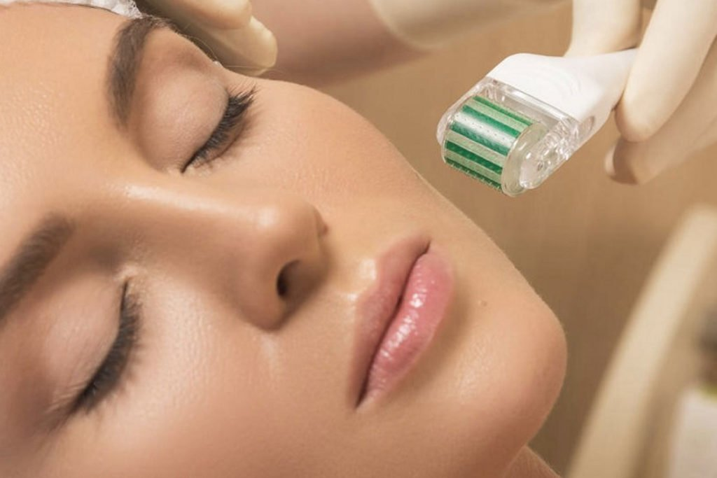 Microneedling For Acne Scars Prp Therapy With Microneedling