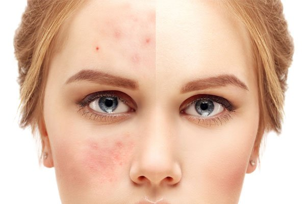 microneedling-for-acne-scars-works