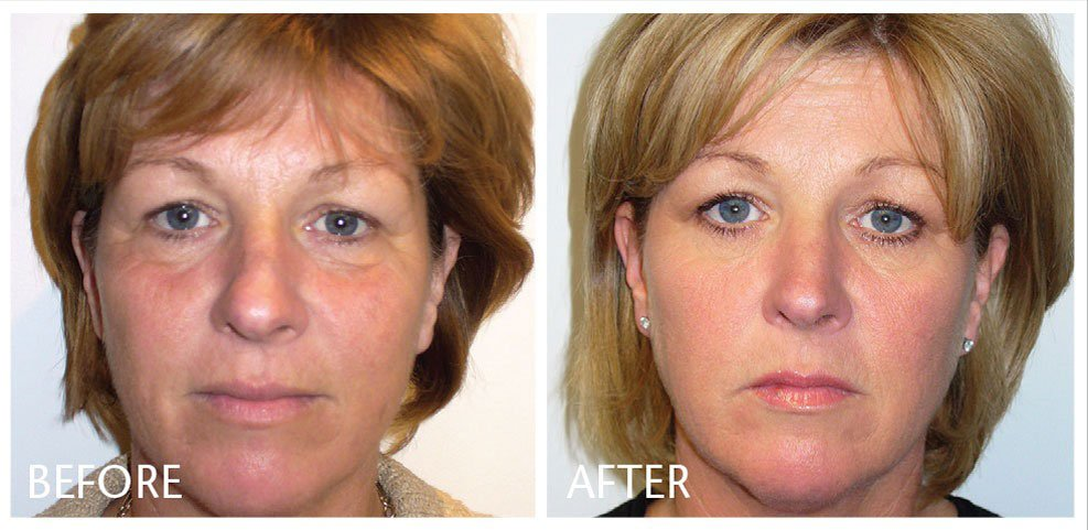 results-of-prp-injection-for-facials