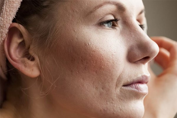 why-acne-scars-occur