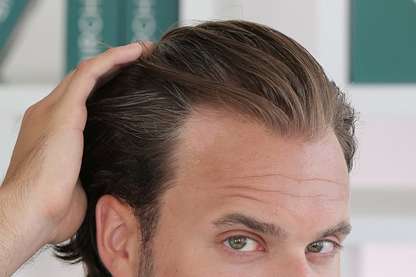 How Long Does PRP Last for Hair Loss | PRP Injection MD